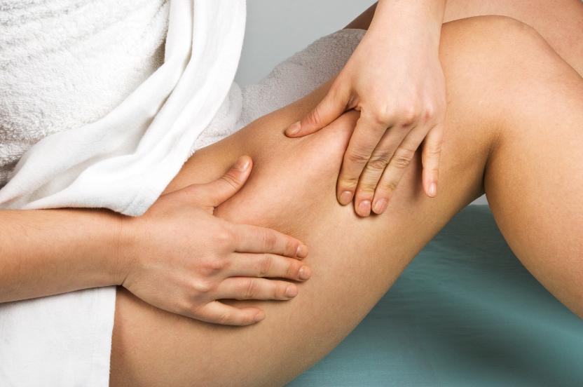 Comment limiter la cellulite ?
